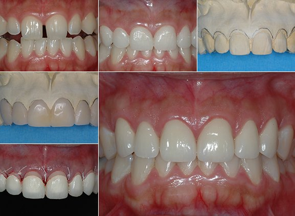 case-Crown-Lengthening